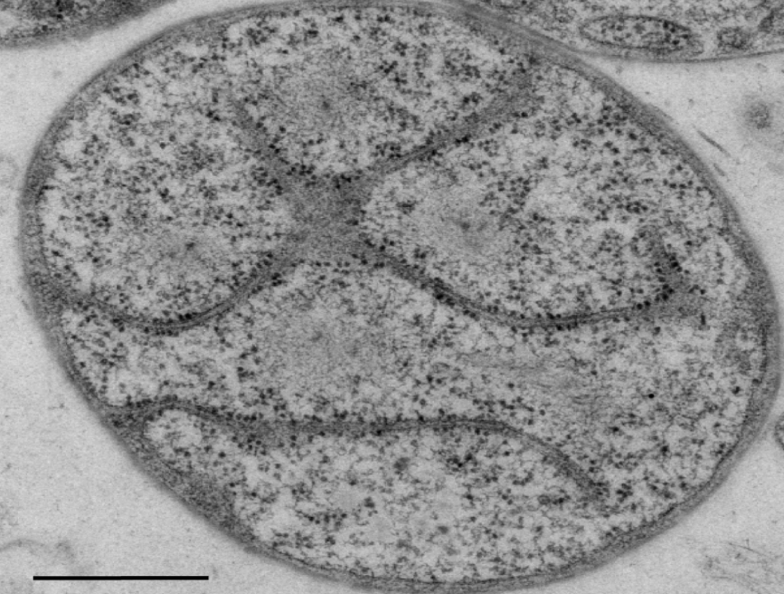 Bacterial Cell Not as Simple as Previously Thought