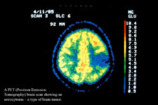 Brain Cancer Treatment Finishes Phase 3 of Clinical Trials